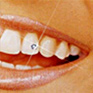 Zahnschmuck